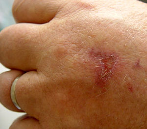 English: Burn (allergic reaction induced by sk...