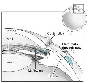 Conventional surgery to treat glaucoma makes a...