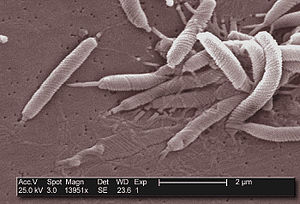 English: This scanning electron micrograph dep...