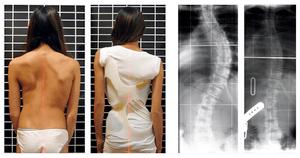 English: Scoliosis patient in Chêneau brace co...