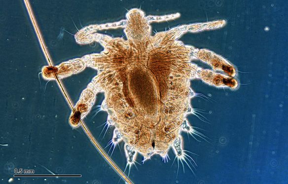 File:Crab louse (251 23) Female, from a human host.jpg