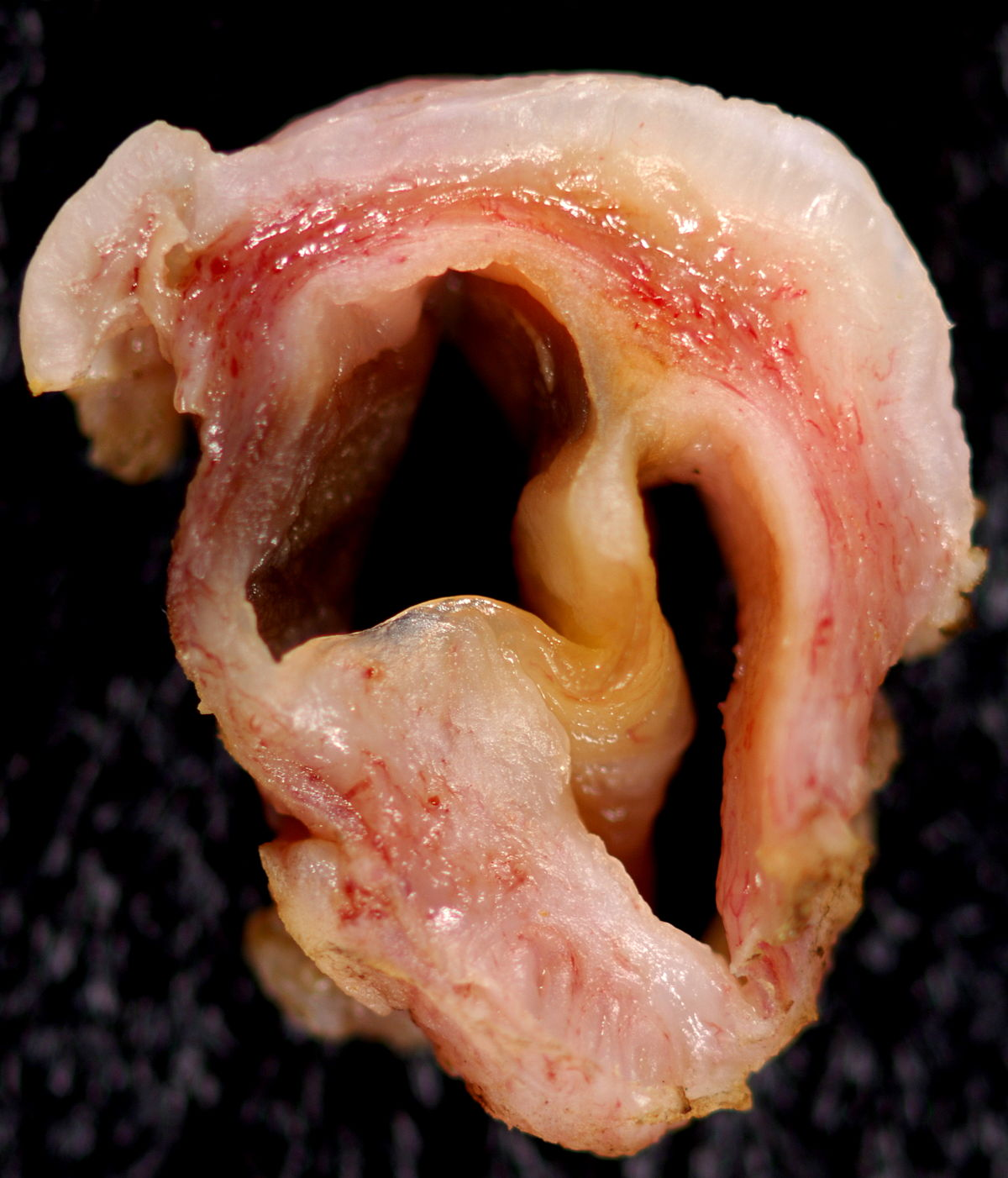 Inclusion Cyst Gartner Duct Cyst S