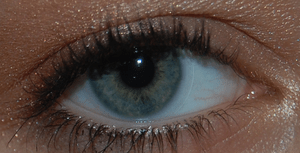 English: Eye with a contact lens (myopia).