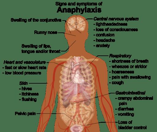 Sinais e sintomas de anafilaxia