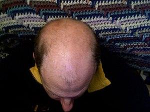English: Bald head