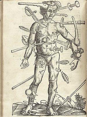 Hans von Gersdorff. Der verwundete Mann. Feldt...