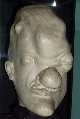 Tertiary syphilis head