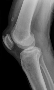 Quadriceps tendon rupture in plain X-ray