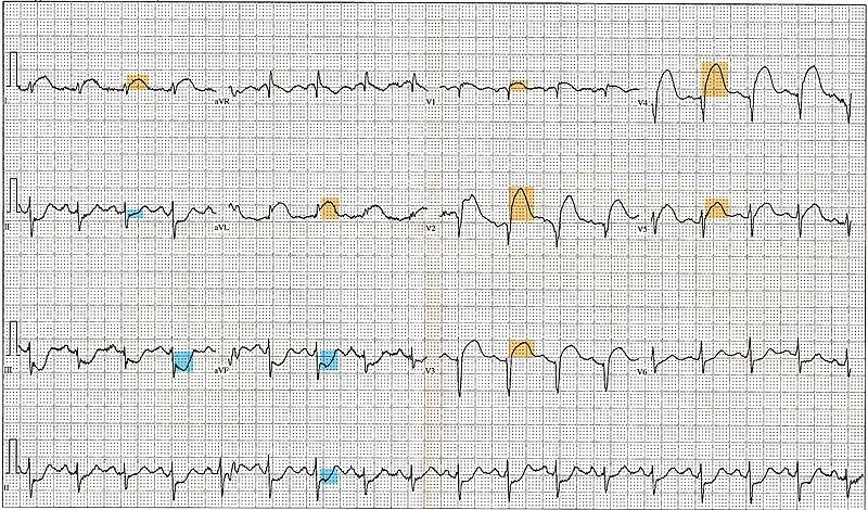 File:12 Lead EKG ST Elevation tracing color coded.jpg