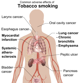Common adverse effects of tobacco smoking (See...
