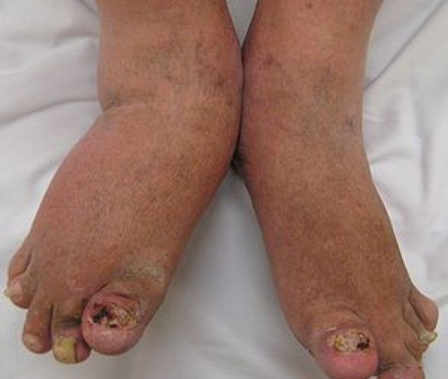 Severe Psoriatic Arthritis Of Both Feet And Ankles Note The Changes To The Nails
