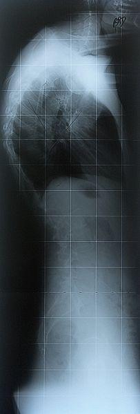 File:RadiografiaRXCifosisScheuermann70Grados.jpg