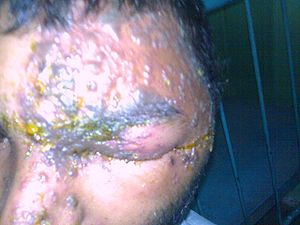 Herpes Zoster of the Ophthalmic division of th...