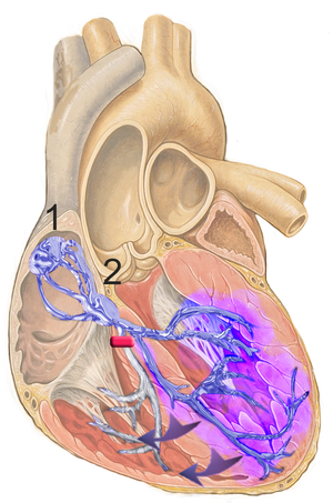 Heart; conduction system with right bundle bra...