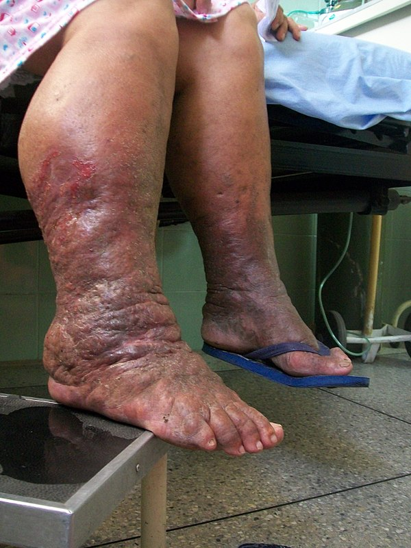 Lymphedema, Lymphoedema, Lymphatic obstruction
