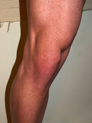 Male knee by David Shankbone