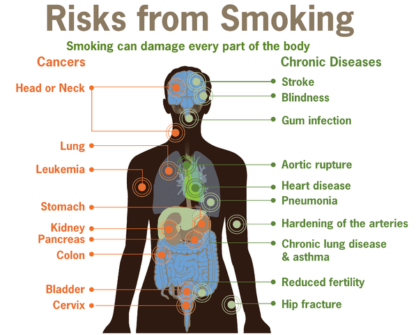 https://i2.wp.com/upload.wikimedia.org/wikipedia/commons/thumb/9/92/Risks_form_smoking-smoking_can_damage_every_part_of_the_body.png/597px-Risks_form_smoking-smoking_can_damage_every_part_of_the_body.png
