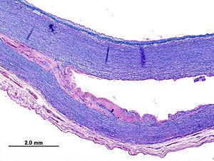 Histopathological image of dissecting aneurysm...
