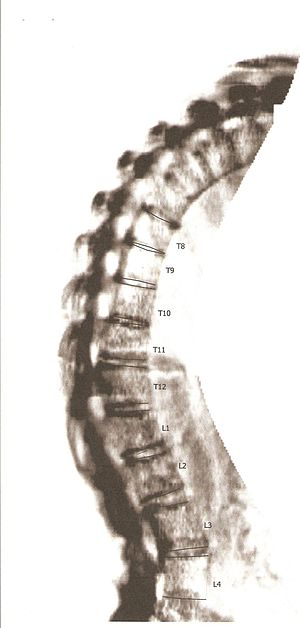 English: Bone Density Scan of Individual with ...