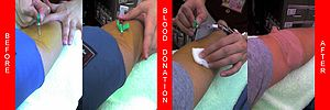 A donor's arm at various stages of donation. T...