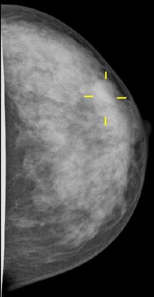 Mammakarzinom, ID T1b. Mammography, breast can...