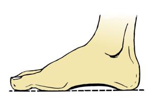 Foot Arche
