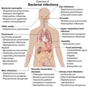 Overview of the main bacterial infections and ...