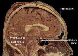 Tuber cinereum hamartomas are at the hypothala...