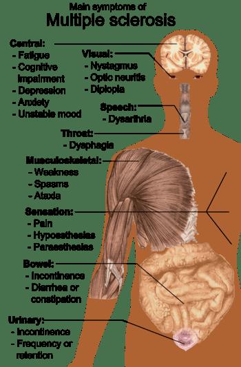 English: Main symptoms of Multiple sclerosis. ...