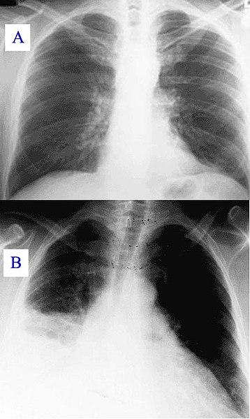 File:Pneumonia x-ray.jpg