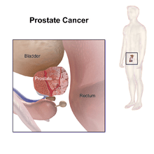 How to know you have Prostate cancer and cure