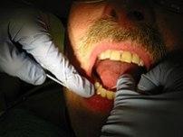 Dental hygienist flossing a patient's teeth du...
