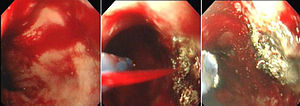 Argon plasma coagulation of bleeding oesophage...