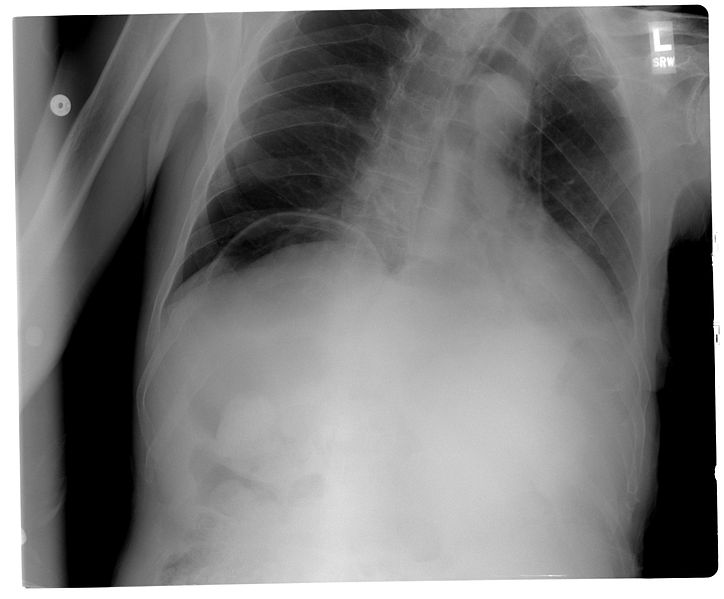 File:Pneumoperitoneum chest X-ray.jpg
