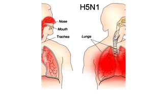 English: Different sites and outcomes of H1N1 ...