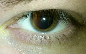 English: A human eye after the pupil was dilat...