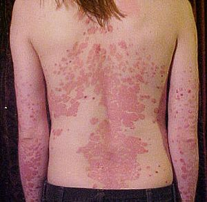 Psoriasis of the back.