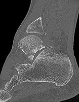 Snowboarders ankle - CT sagittal.jpg