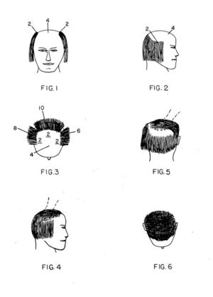 This variant of the comb over was patented in ...