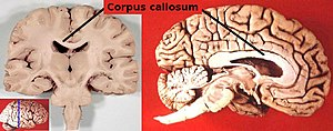 English: Location of the corpus callosum, the ...
