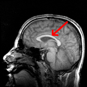 Magnetic Resonance Imaging - Human brain side ...