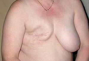 Mastectomie