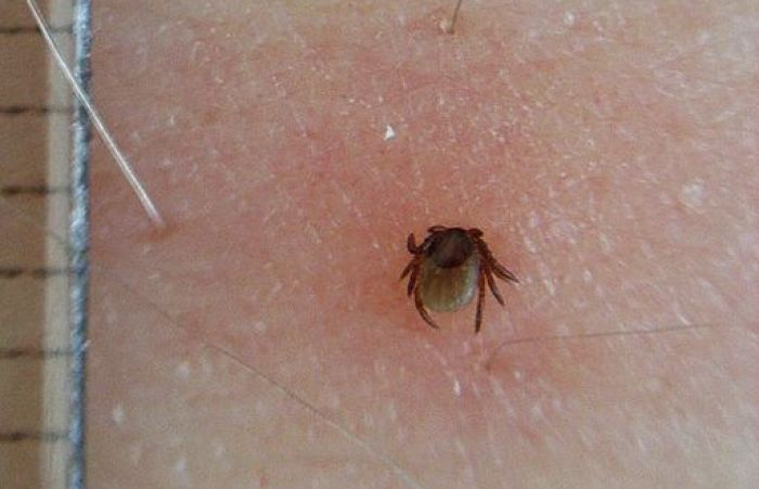 Tick bite, redness, tick, Lyme disease