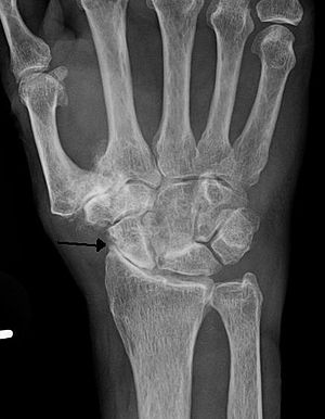 Severe osteoarthritis and osteopenia of the ca...
