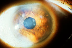 English: Subepithelial mucinous corneal dystro...