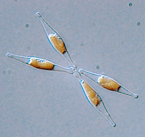 Light Micrograph of Phaeodactylum tricornutum....