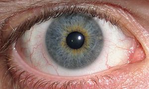 Central heterochromia of the iris; a blue/grey...