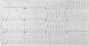 12 lead electrocardiogram of a ventricular tac...