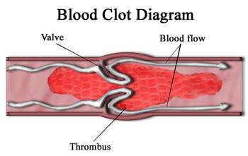 Blood clot diagram (Thrombus)
