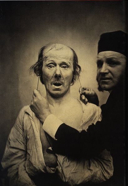 https://i2.wp.com/upload.wikimedia.org/wikipedia/commons/thumb/c/c7/Guillaume_Duchenne_de_Boulogne_performing_facial_electrostimulus_experiments_%283%29.jpg/411px-Guillaume_Duchenne_de_Boulogne_performing_facial_electrostimulus_experiments_%283%29.jpg